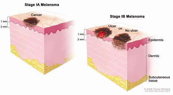 Cos'è il melanoma e quali sono le cause?