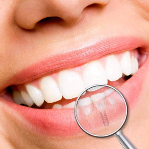 impianti dentali: problemi post impianto